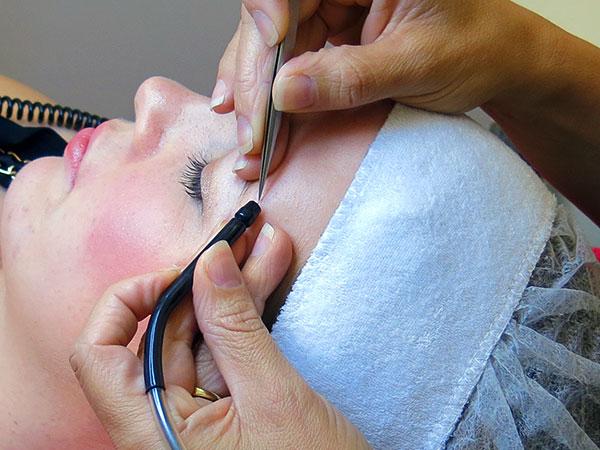 Electrolysis Hair Removal | Skin Chemistry