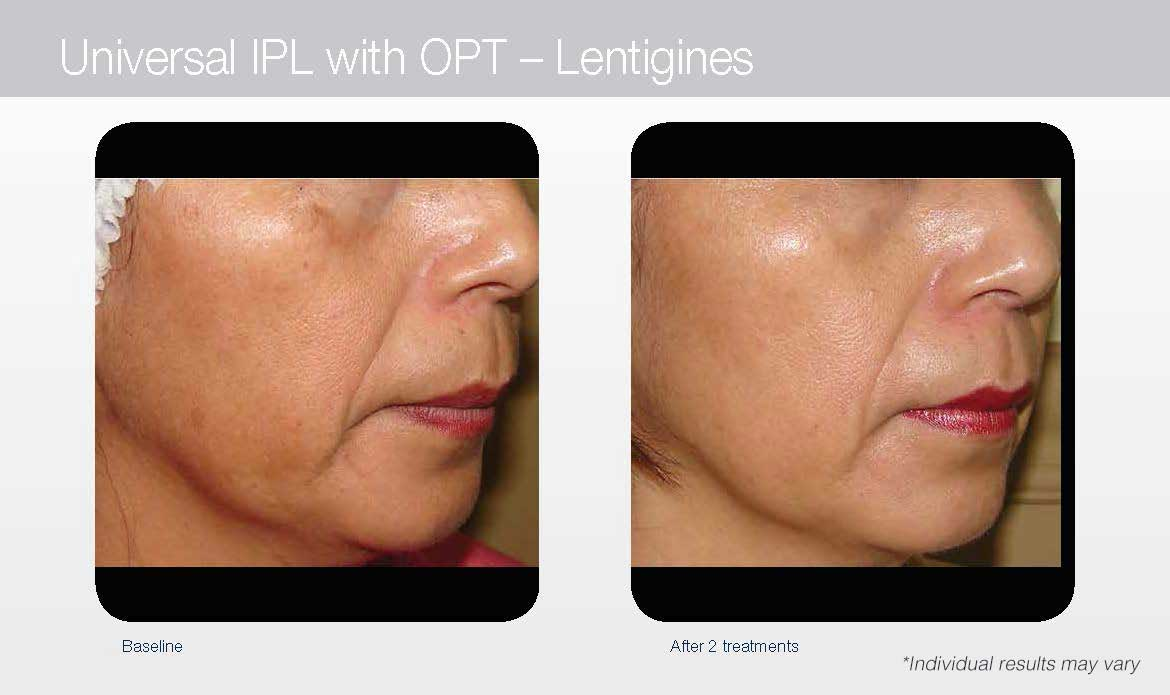 IPL Photorejuvenation